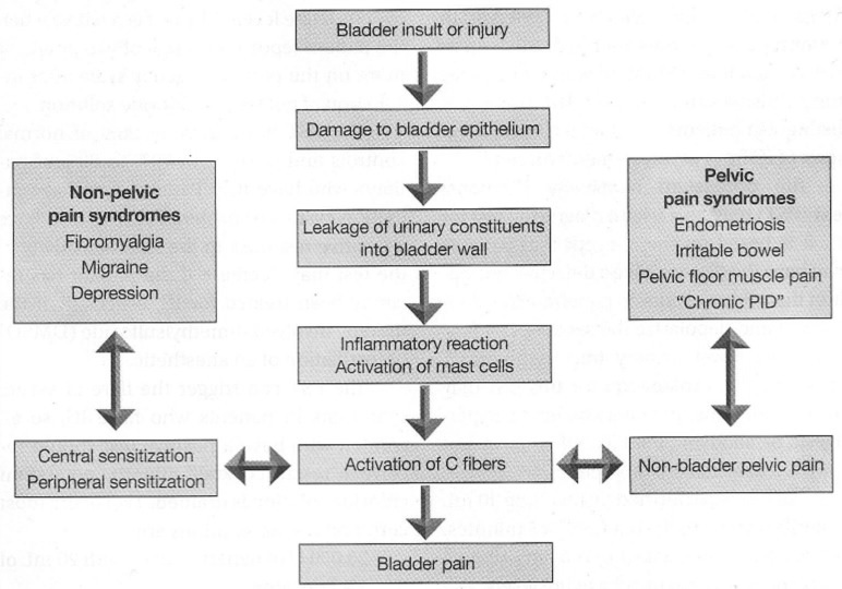 Pathophysiology Of Gonorrhea Diagram Interstitial cystitis treatment ...